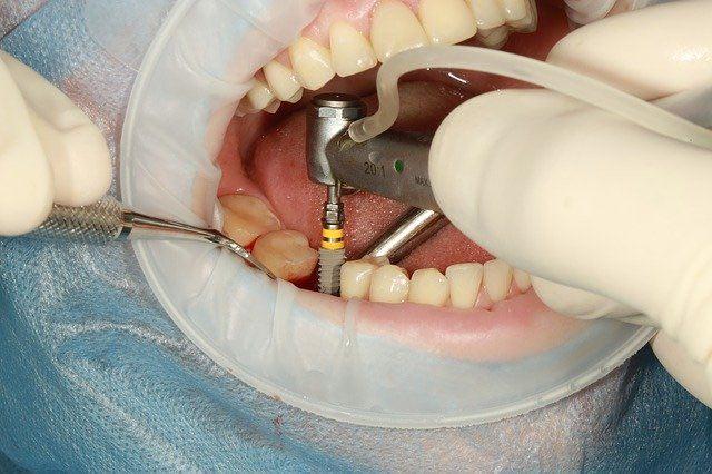 dent de remplacement et Implant dentaire à Nice